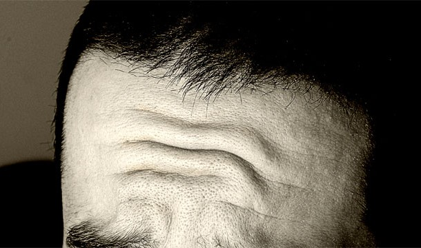 Frunte