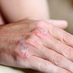 Psoriazis: cauze, tipuri, simptome, tratament